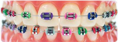 Color with Braces
