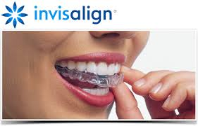 invisalign-sterling-heights-mi